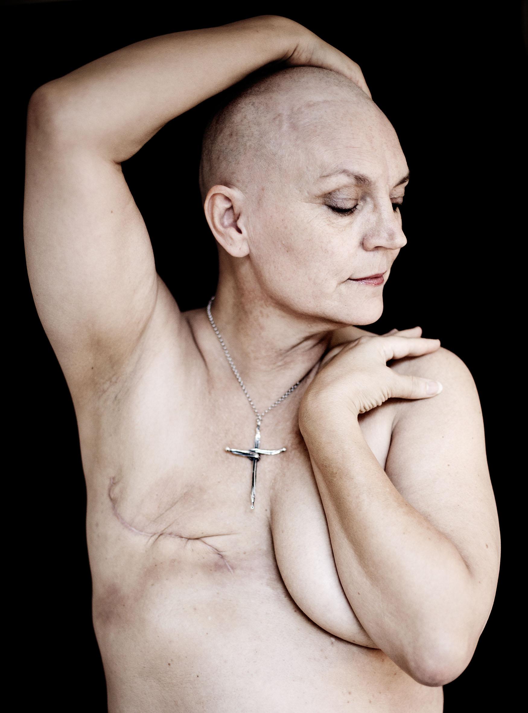 fjernelse af bryst